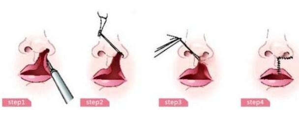 西安博医唇裂修复需要多少钱