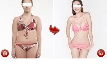 深圳兰乔做全身吸脂 脂肪可再次利用