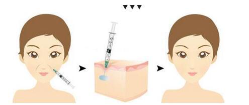 天津缔美玻尿酸祛法令纹后的注意事项