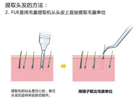 台州欧亚种睫毛手术后该如何护理