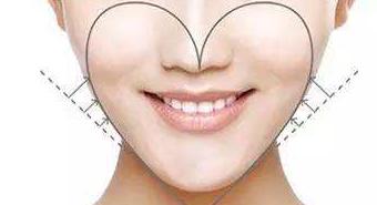 玻尿酸隆下巴后多久能定型
