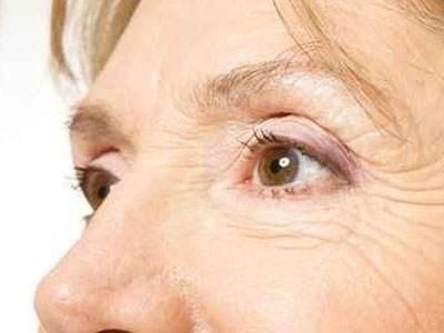 运城华美激光治疗老年斑价格贵吗