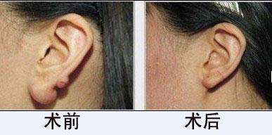 南通佳美做耳垂畸形修复多少钱