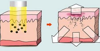 永州景贺怎样可以治疗黄褐斑