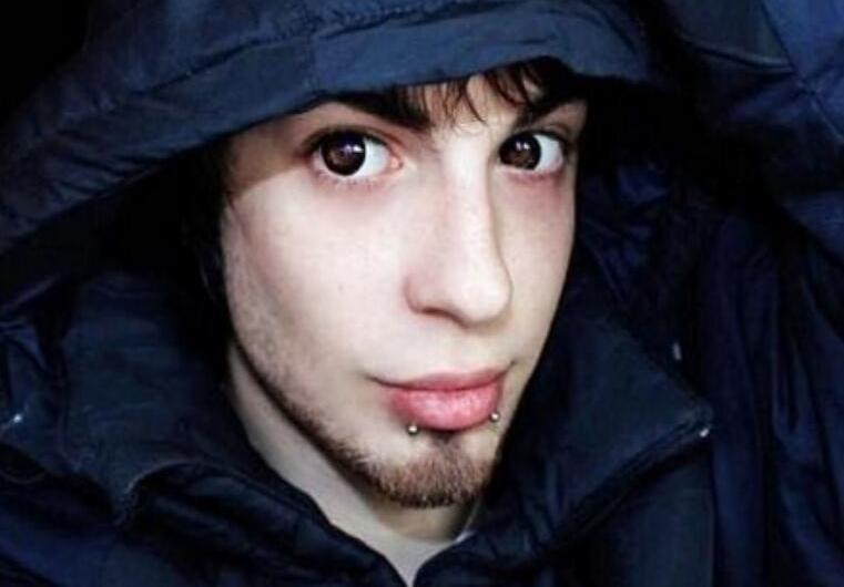 阿根廷25岁男子整容成精灵