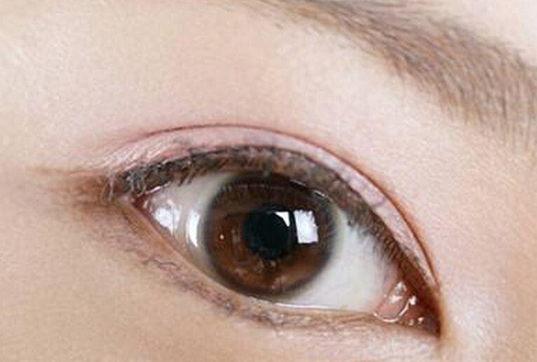 泉州欧菲整形做双眼皮手术 眼皮被开了一个洞