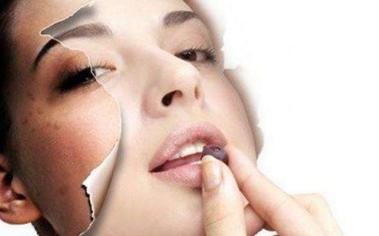 激光祛斑多久可以洗脸