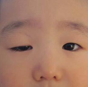 珠海仁爱做眼脸下垂矫正术的操作过程