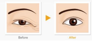 珠海阳光医院种眉毛的步骤