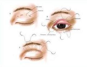 珠海陆达做双眼皮修复术的原理