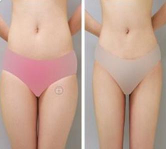 腰腹部做吸脂的副作用如何避免