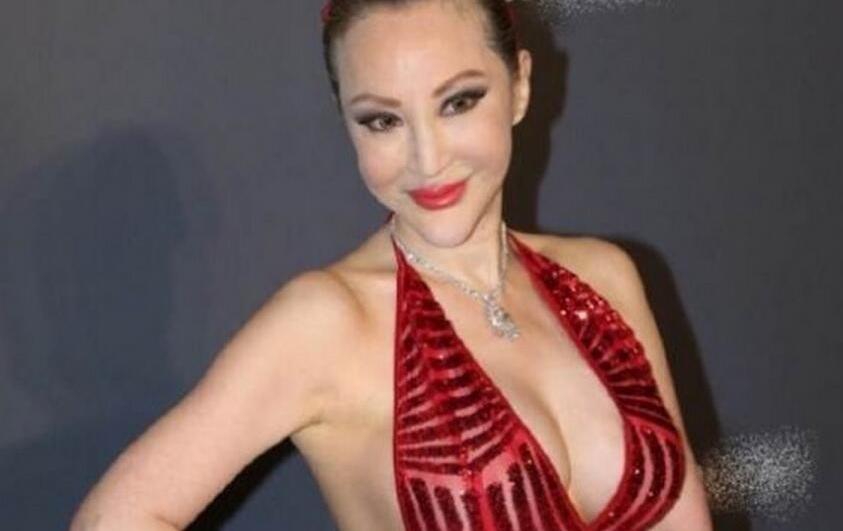 社交皇后薛芷伦 抗乳癌导致容貌大变