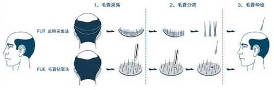 头发种植后头头三天能不能沾水