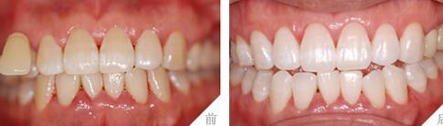 冷光美白牙齿案例