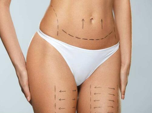 做吸脂减肥的禁区部位