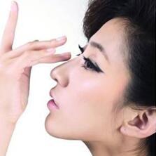 杭州美之源做鼻综合 改善你那不完美的鼻