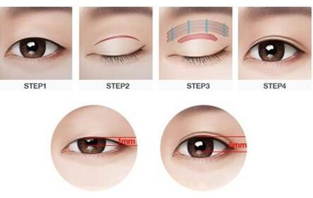 天津滨海医院做双眼皮修复手术的特点