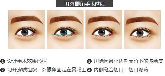 桂林新华做开眼角的过程