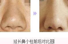 郑州瑞蓝延长鼻小柱适合哪些症状