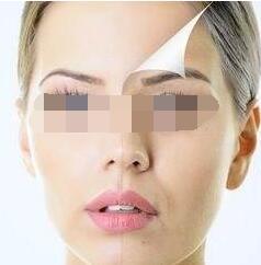 温州韩星做面部线雕提升手术疼不疼
