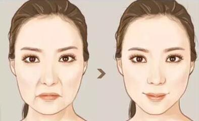 填充鼻唇沟术 保持年轻的状态