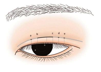 做纹绣纹眉术 让你的眉毛更立体