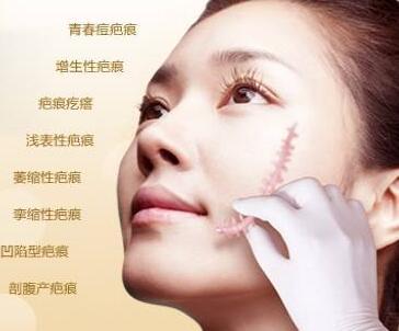 郑州柏丽芙做激光去疤痕多少钱