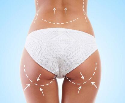 臀部吸脂减肥术 你可以做吗
