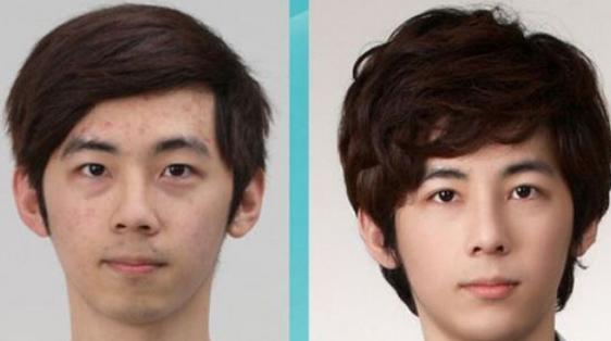 成都第三人民医院疤痕性种植头发的优势