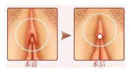 阴蒂肥大矫正的麻醉方式