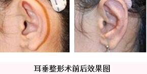 成都大华做耳垂畸形整形的过程