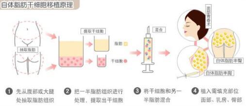 北京东方瑞丽自体脂肪隆胸多少钱
