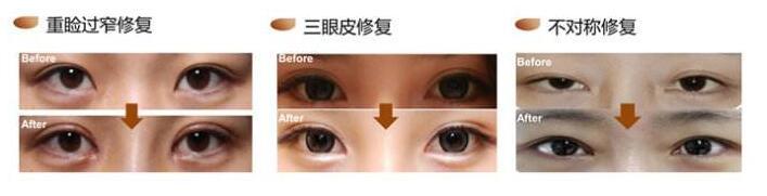 曾良生做双眼皮修复多少钱