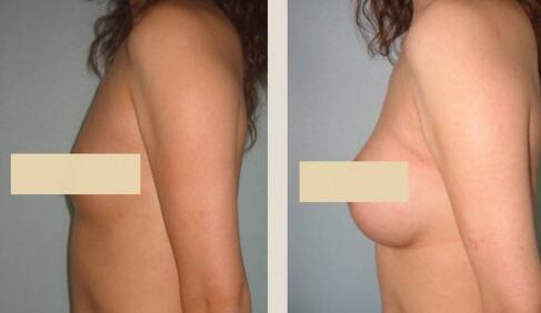 兰州姜医生假体隆胸取出的方法有哪些