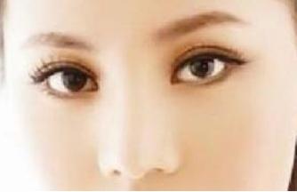 哈尔滨索菲朝天鼻矫正方法有哪些
