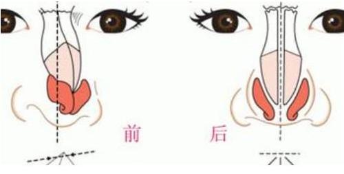 哈尔滨臻美歪鼻子矫正方法