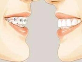 牙槽骨整形手术能彻底矫正吗