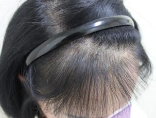 哪种种植头发的效果更好