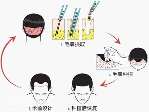 济南美思慕种植头发过程 你了解吗