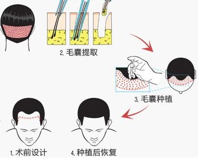 植发手术做一次就可以吗?
