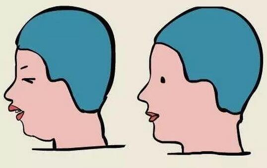 珠海第二整形达拉斯鼻综合 拯救自己的侧颜