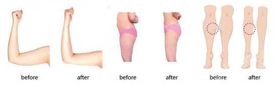 吸脂瘦腿的五大要求 哪些人适合做