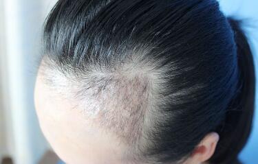 毛发种植有什么样的特点