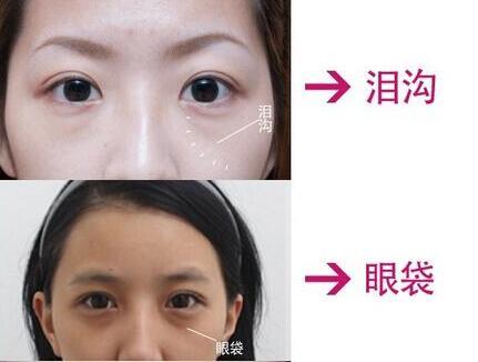 激光去眼袋手术价格是多少