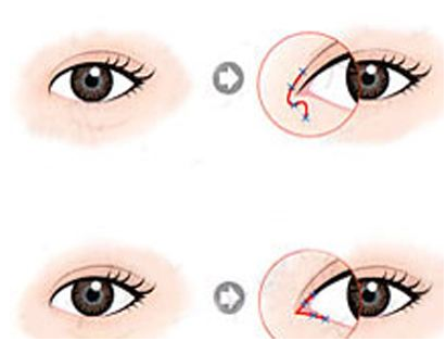 临沂伊维美开眼角疤痕增生怎么办