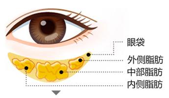 临沂协和手术祛眼袋反弹吗
