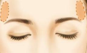 玻尿酸丰太阳穴 让面部更协调