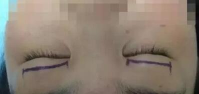 双眼皮的4种方法 哪种适合你