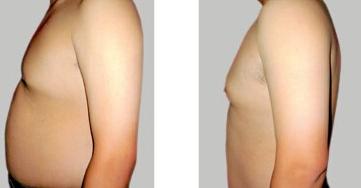 腹部吸脂术是一次性的 容易反弹吗