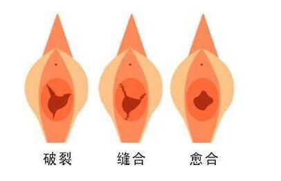 处女膜修复手术会不会有疼痛感